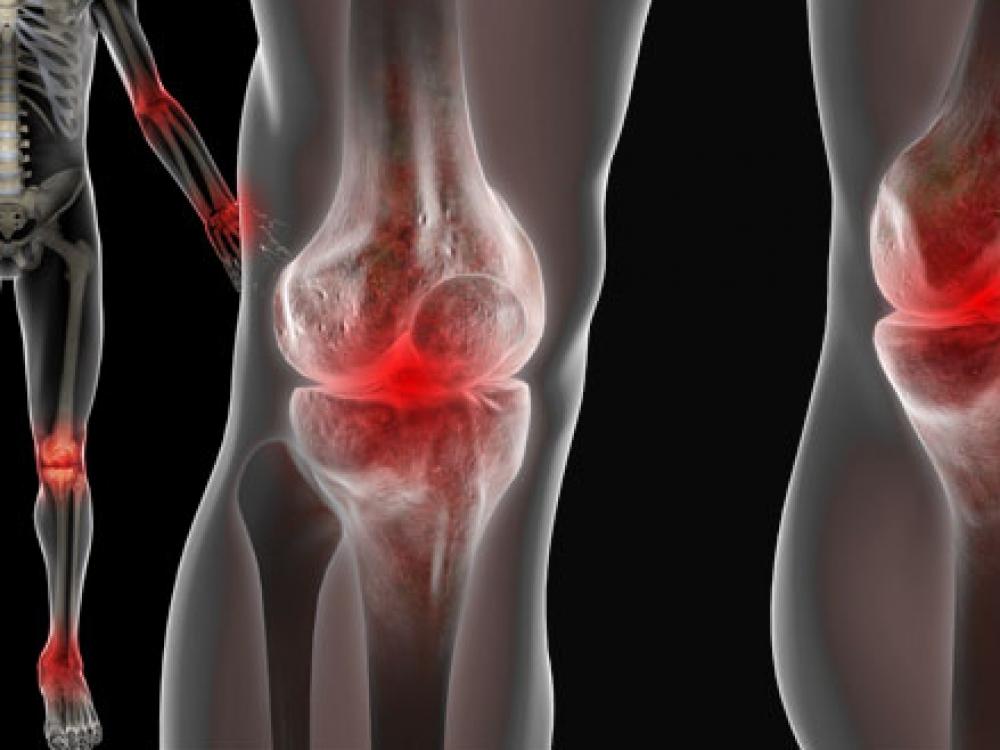 kaip pašalinti iš artrito piršto uždegimą