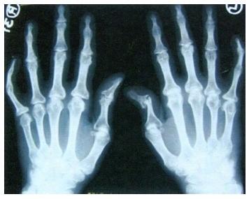 artritas spurgai ant pirštų