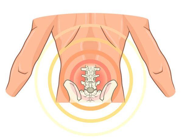 tepalas skirtas skausmo gydymui osteochondrozės laikykite sąnarius dėl liaudies teisių gynimo rankas