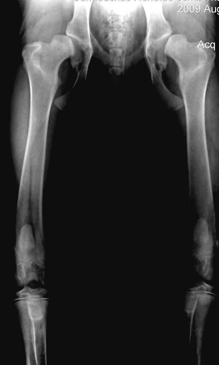 artritas piršto rankos liaudies metodai skausmas rudenį sąnarių
