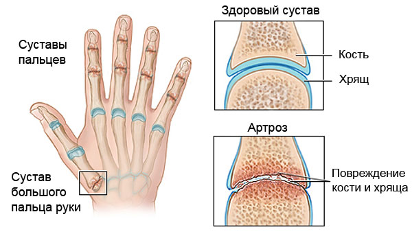 artrozės jungtys šepetys rankinis gydymas įrankiai iš sąnarių skausmas ir radikulitui