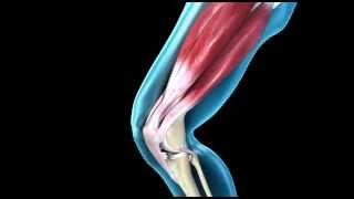 susukti sąnarių ir gerklės raumenys elton sąnarių gydymas
