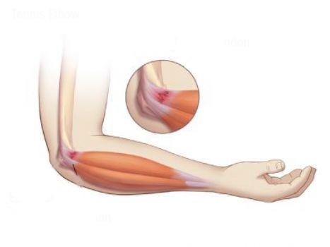 skauda abi alkūnės sąnarių skausmas prevencija