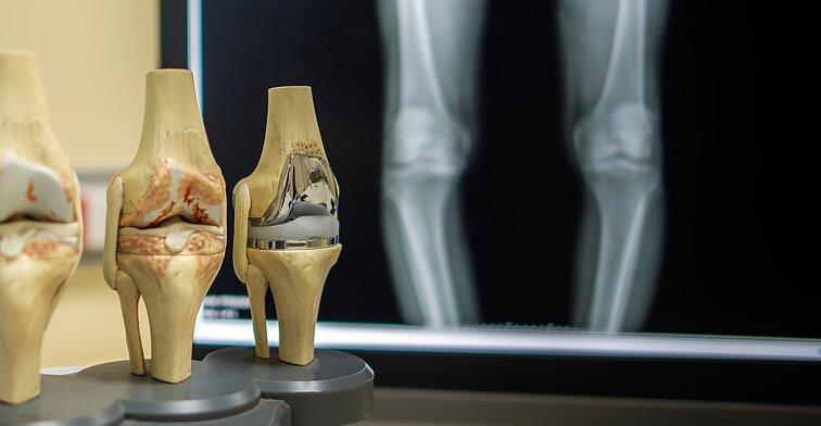 gydymas sąnarių rusijoje po stuburo isvarzos operacijos ar priklauso invalidumas
