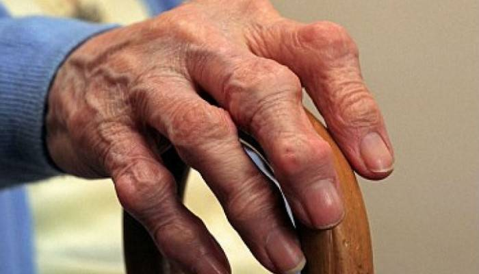 receptai sąnarių rankinių šepečių gydymo gelio tepalas su sąnarių skausmas
