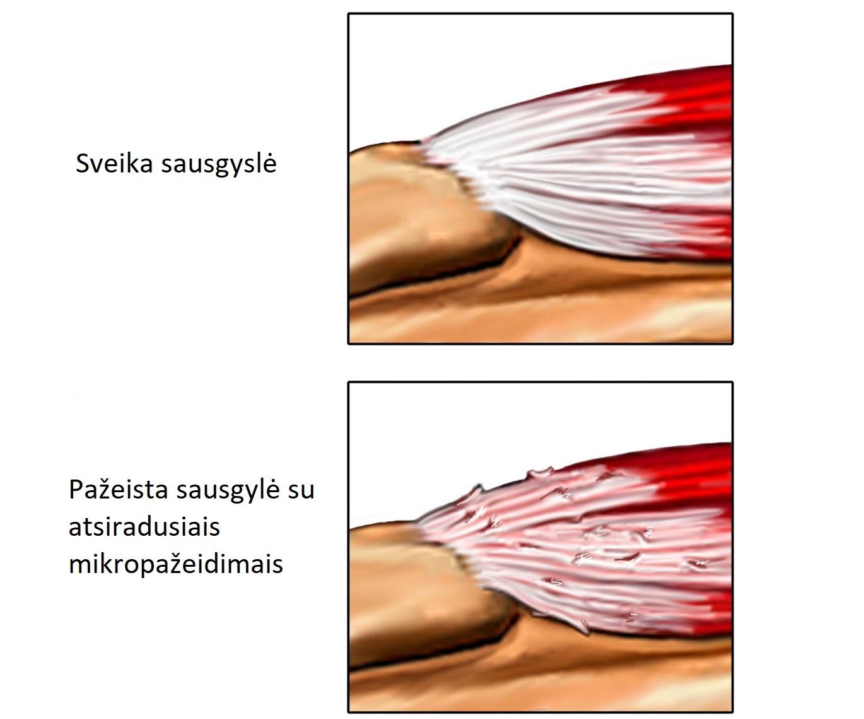 epikondilitą alkūnių sąnarių gydymo