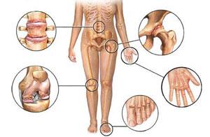 komplikacijos ligų sąnarių gydymas sąnarių pagal dope sėklų
