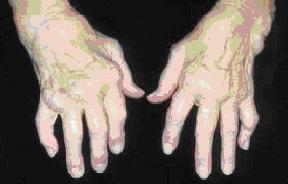 kaulų ir sąnarių ligos gydymas gydymo skausmas psichika sąnarių