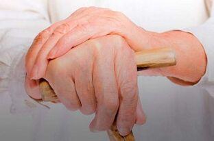 artrozė ir artrito pirštų sąnarių