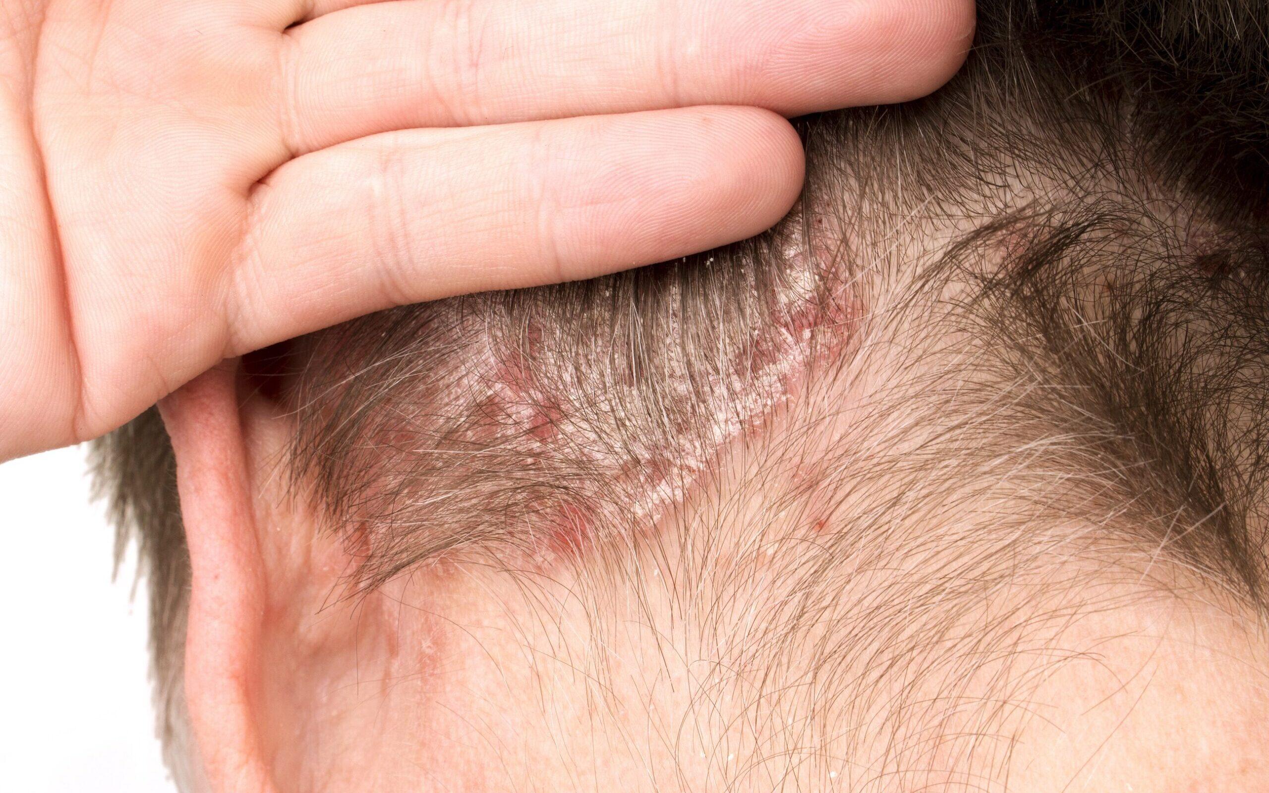 streptokokų infekcija sąnarių ligos