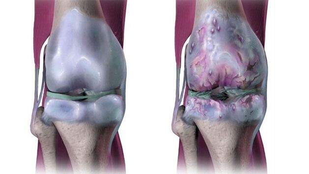 runos dėl artrozės gydymo sąnariai skauda ir gydymas