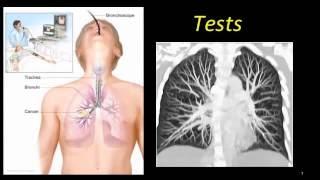 gydymas fibroze sąnarių