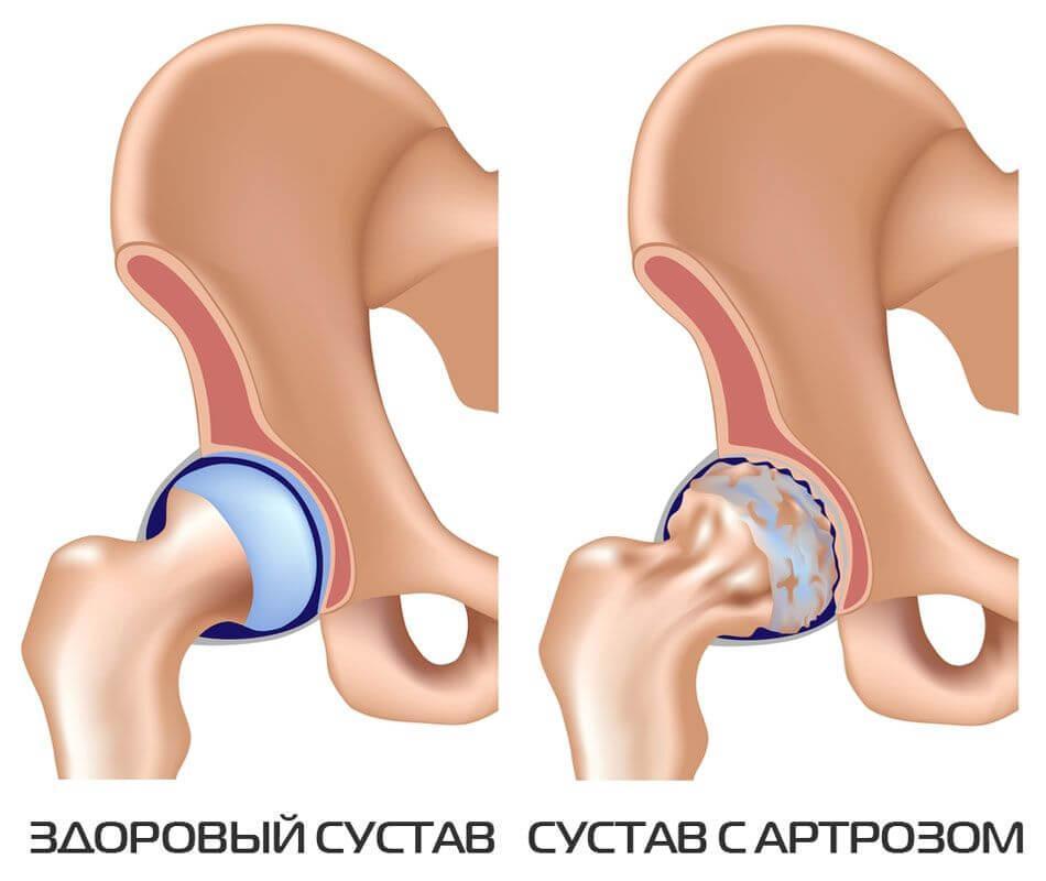 gonartrozės liga susta gydymas alkūnės sąnario