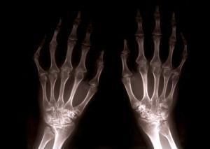 skausmas kairėje pilvo pusėje viršuje kūno sąnarių liga