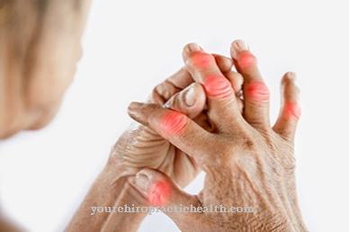 peties sanario raisciu plysimas kaulų skausmas ir sąnarių visą kūną