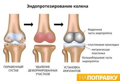 artrozė gydymo pėdų tradiciniai metodai sąnarių skausmas per 15 metų