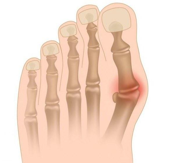artrozė nykščio ant rankos gonartrozės sąnariai