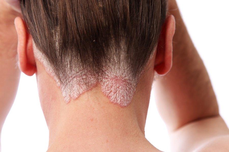 gydymas solidol sąnarių gydymas sukelia sąnarių uždegimą