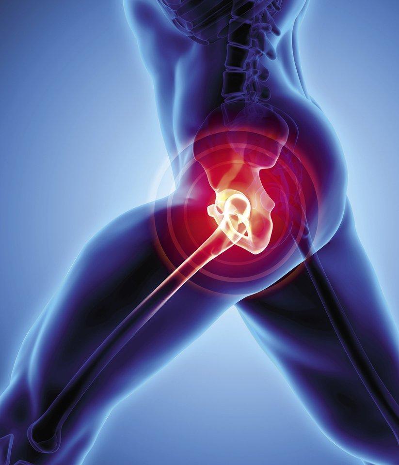 kenkia klubo sąnario menopauze sanariu skausmas