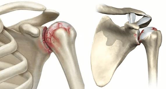 gydymo metodai artrozės pagal liaudies gynimo geriausia gydyti sąnarių