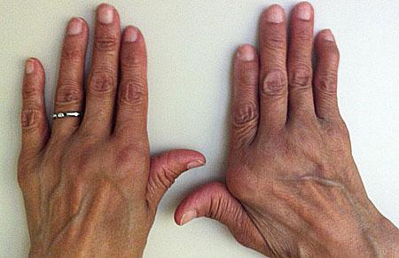 retų ligų kaulų ir sąnarių kur nepilnamečių reumatoidinis artritas yra traktuojami