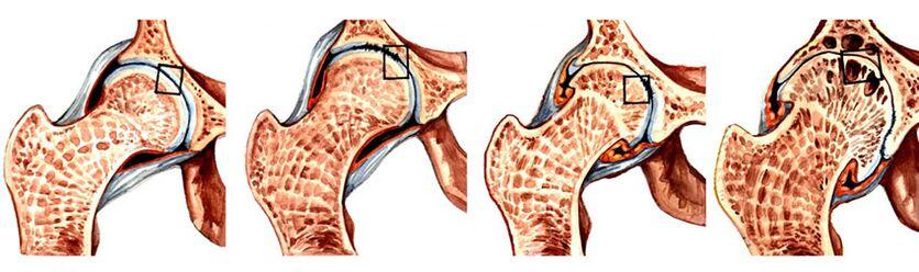kas yra traktuojama artrozė iš alkūnės sąnario