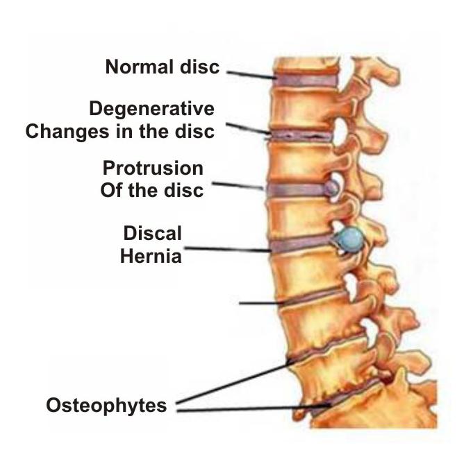 osteochondrozė gydymas bendrų nuomonių