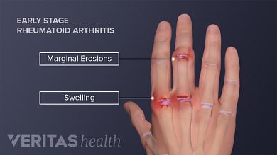 edema painful joints pirsto sanario uzdegimo gydymas