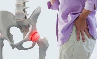 fibromialgija uždegimas spinduliuotės sąnario