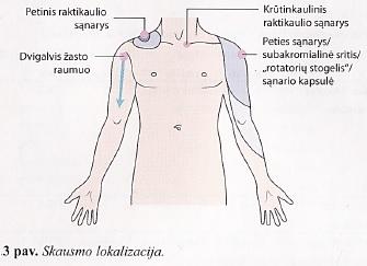 artrozė iš peties sąnarių 3 laipsnių gydymo kur yra po simuliatorius skauda sąnarius