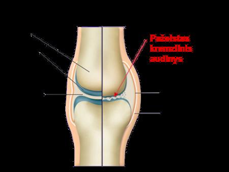 skausmas ir tepliojimas ir pirštų sąnarių po to kai trauminio artrozės gydymo
