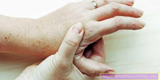 artrozė iš metacarpophalangeal sąnarių gydymo
