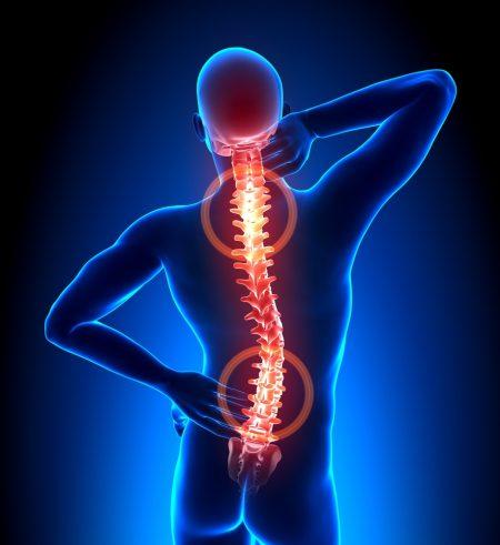 plavix sąnarių skausmas greitas gelio peržiūras osteochondrozės