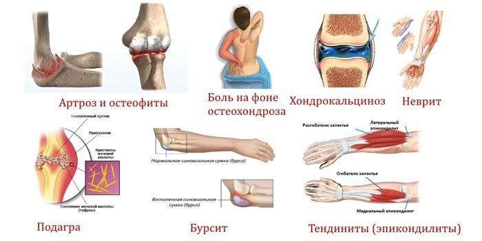mes padėsime apie šio artrozė taisyklių sąnarius