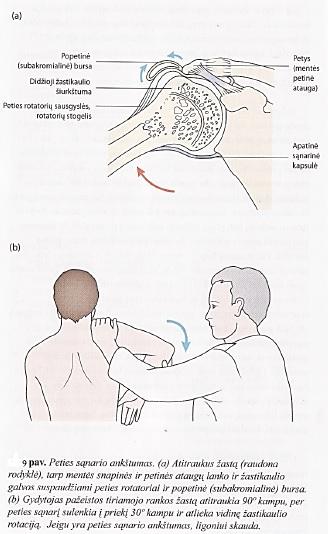 ligos peties sąnario judesių gydymo trauma pečių krepšiai palaikimo