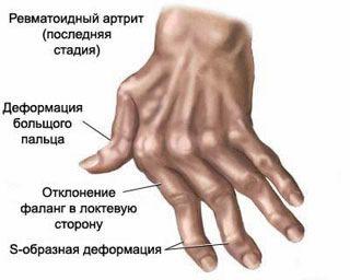 mėlynė ant piršto gerklės sąnario bendra tempimo gydymas pirštas