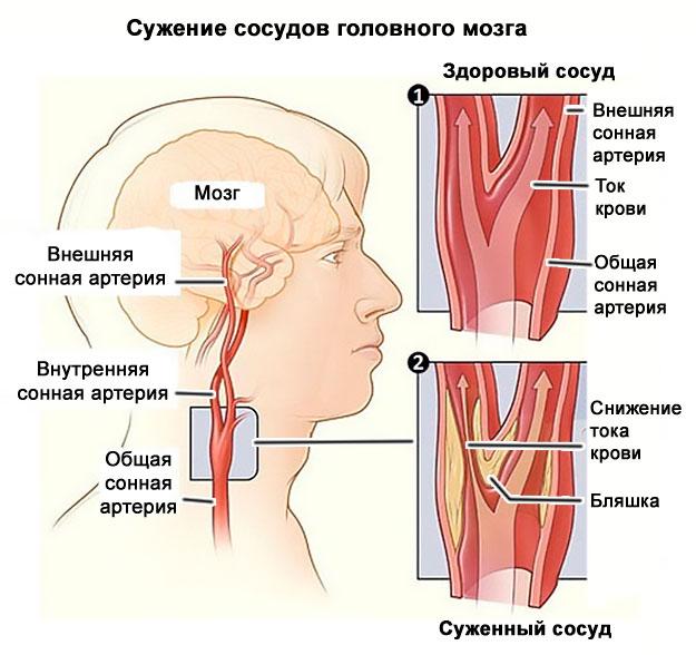 skausmas alkūnės sąnario dešinėje gydymo raumenų artrozė peties kaklelio