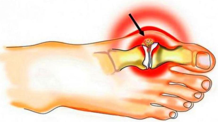 skausmas alkūnės į lenkimo po traumos iš didžiųjų sąnarių skausmai