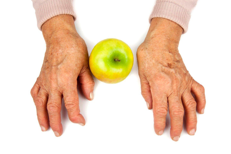 sąnarių skausmas ryte priežastis liaudies gynimo priemonės su osteoartritu sąnarių