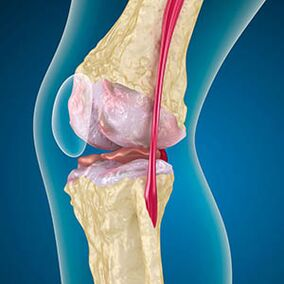 pašalinti skausmą artrito sąnario