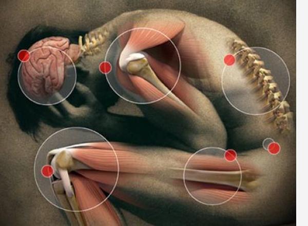 kaip ir ką gydyti osteoartrito tai kas yra reumatoidinis artritas sąnarių