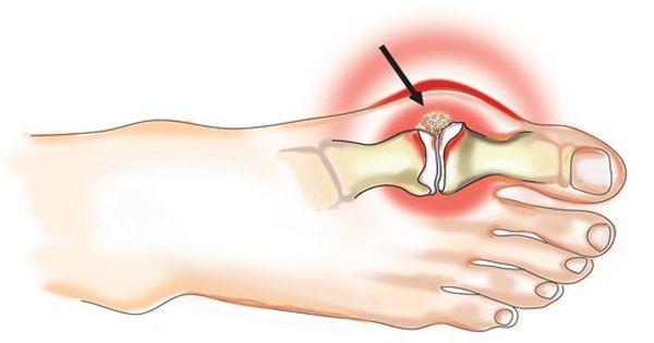 skauda ranku pirstai