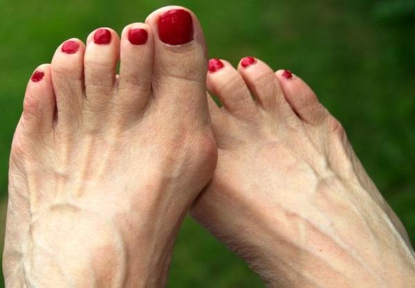 kūgis ant pėdų gydymui sąnarių