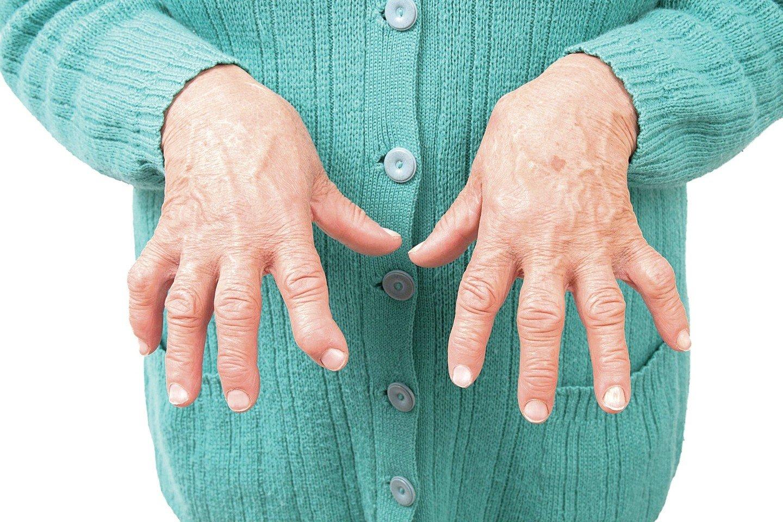 ant piršto į artritą rankų skauda alkūnės