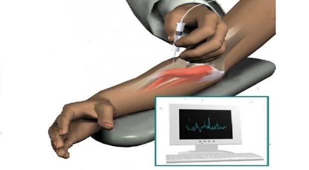 tradicinių gydymo metodai artrito alkūnės