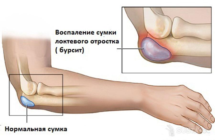 tradicinių gydymo metodai artrito alkūnės pakuotės tepalas į artrito pirštais