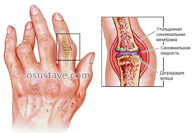 gydymas artritu pirštų liaudies gynimo sąnarių