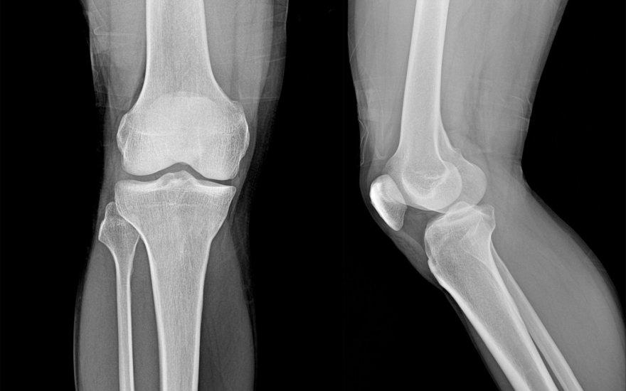 ne šyla tepalai osteochondrozė peties sąnario skausmas kai pakėlė rankas po traumos