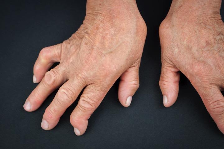 liaudies medicina artritas praėjusio sustav ls bro į sąnarių skausmas