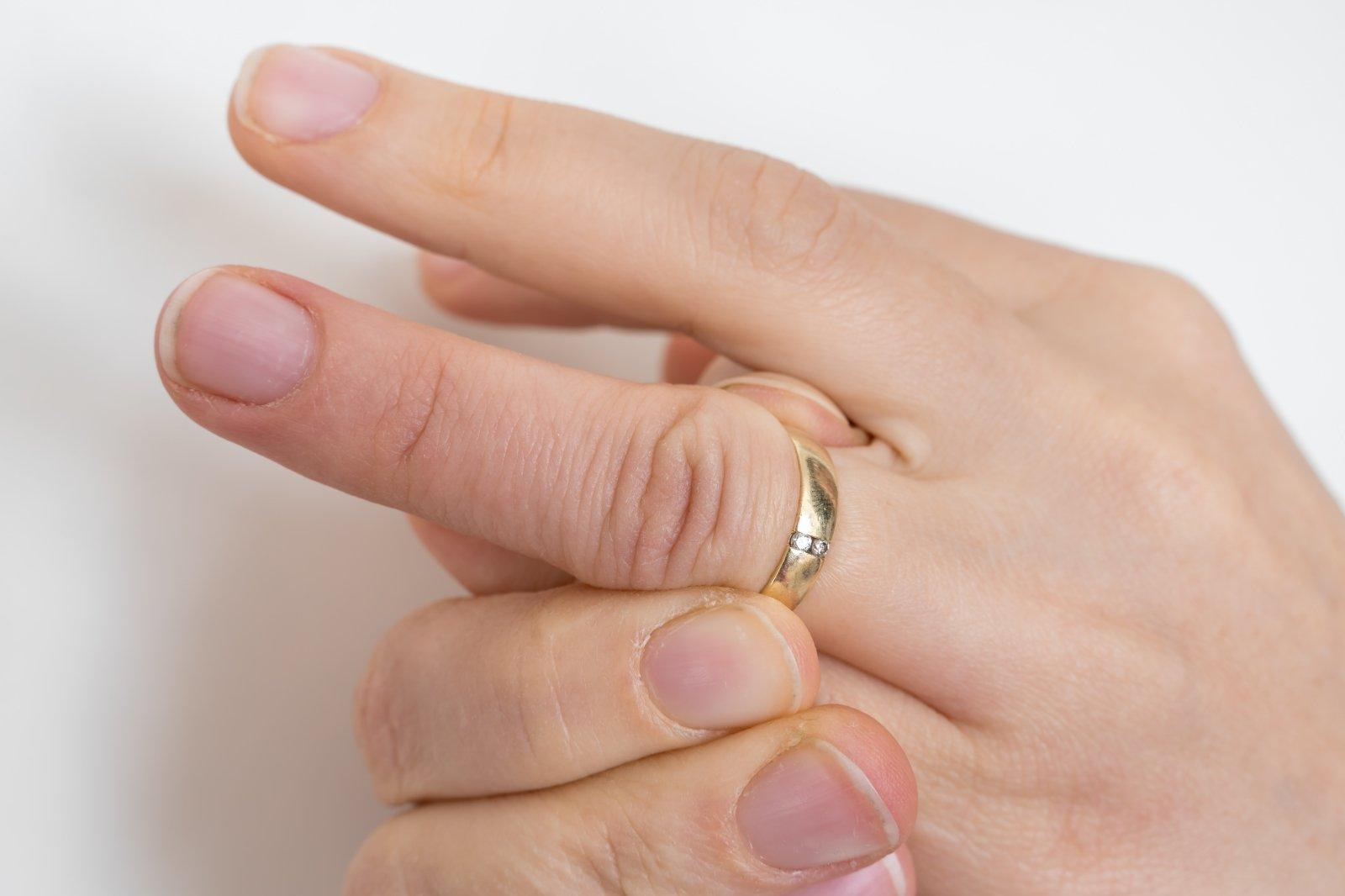 uždegimas į rankas pirštų sąnarių liaudies gynimo priemonės osteochondrozė stuburgalio
